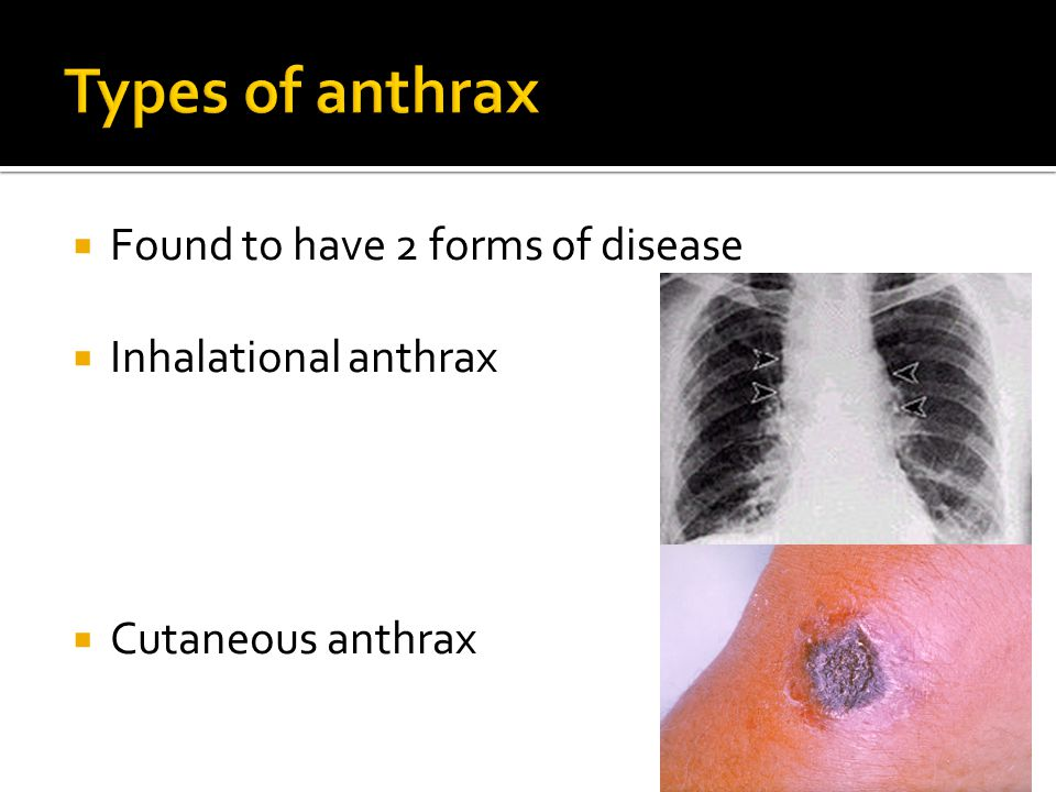  Found to have 2 forms of disease  Inhalational anthrax  Cutaneous anthrax