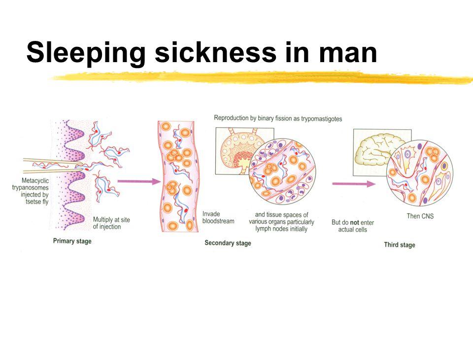 Sleeping sickness in man