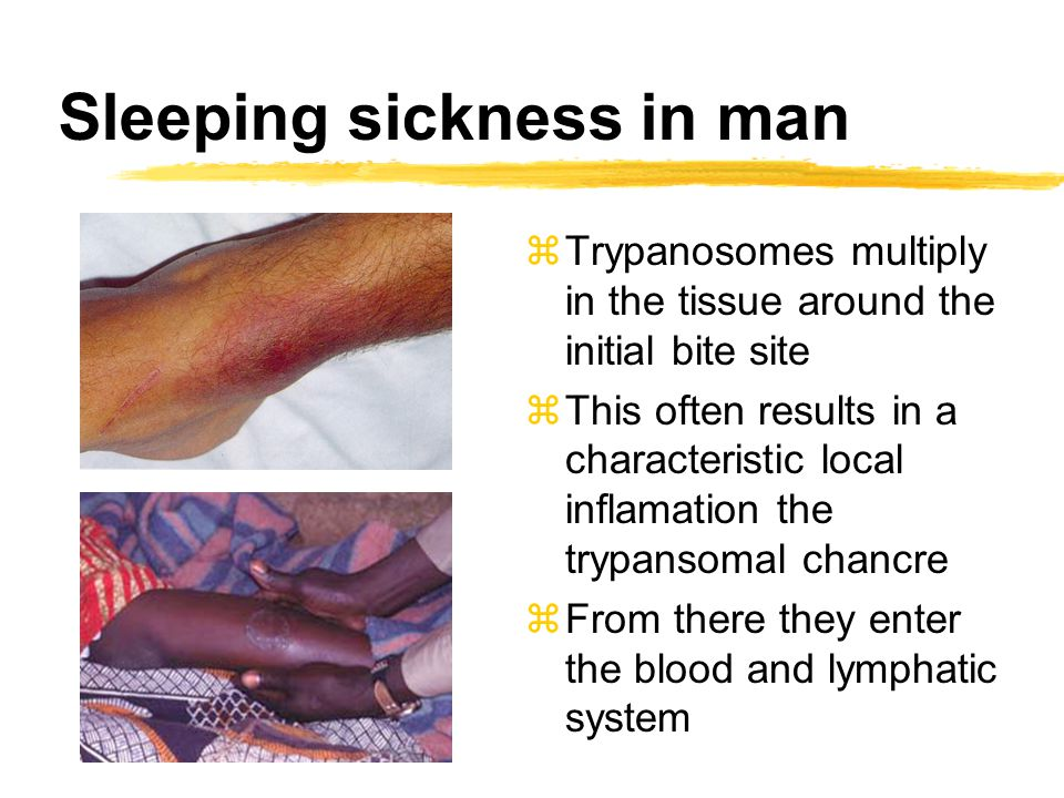 zTrypanosomes multiply in the tissue around the initial bite site zThis often results in a characteristic local inflamation the trypansomal chancre zF