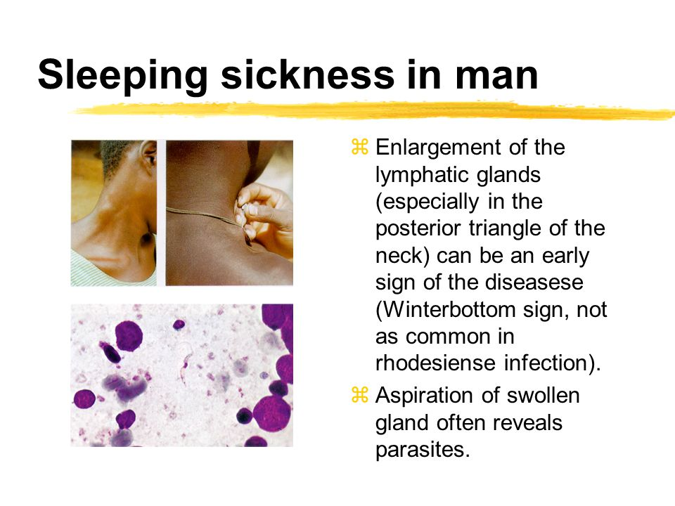 Sleeping sickness in man zEnlargement of the lymphatic glands (especially in the posterior triangle of the neck) can be an early sign of the diseasese