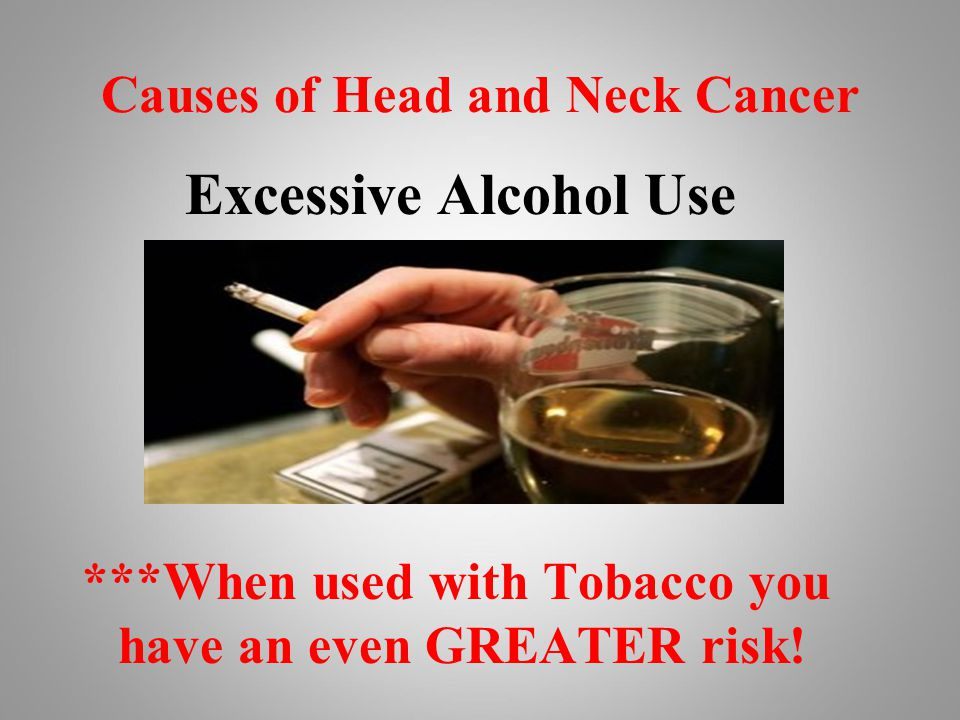 Causes of Head and Neck Cancer Excessive Alcohol Use ***When used with Tobacco you have an even GREATER risk!
