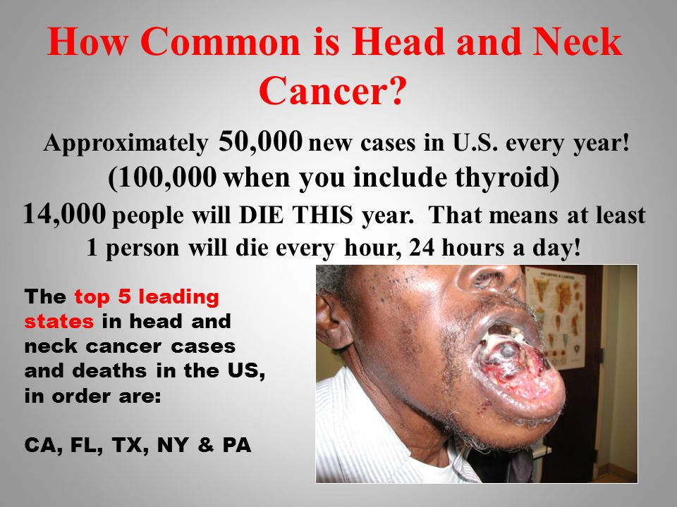 How Common is Head and Neck Cancer. Approximately 50,000 new cases in U.S.