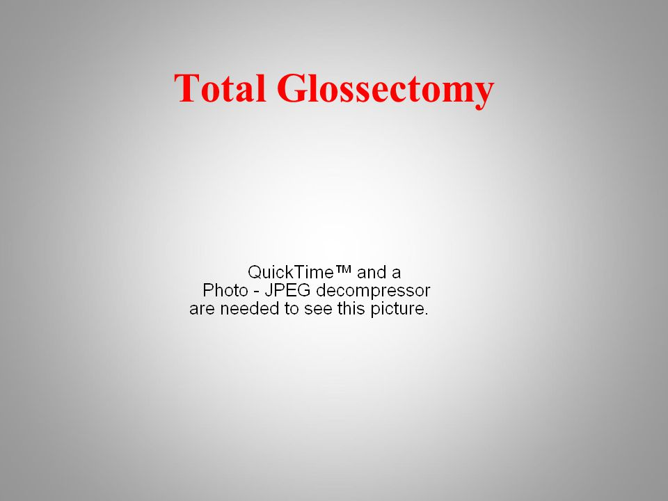Total Glossectomy