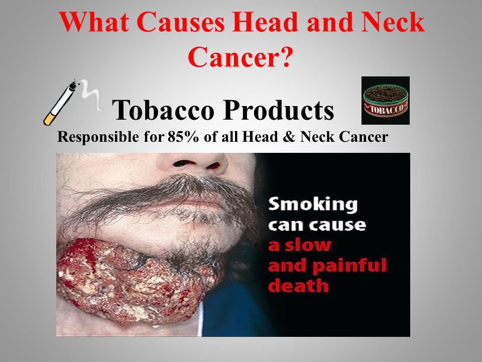 What Causes Head and Neck Cancer? Tobacco Products Responsible for 85% of all Head & Neck Cancer
