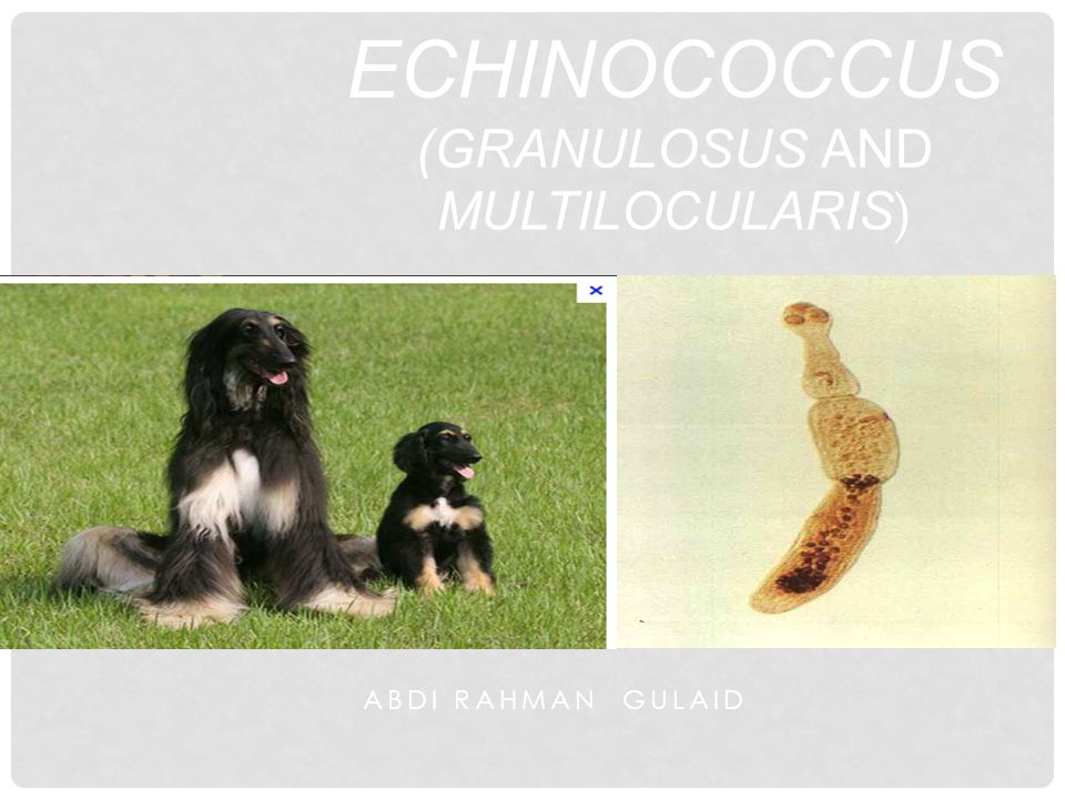 ABDI RAHMAN GULAID ECHINOCOCCUS (GRANULOSUS AND MULTILOCULARIS )