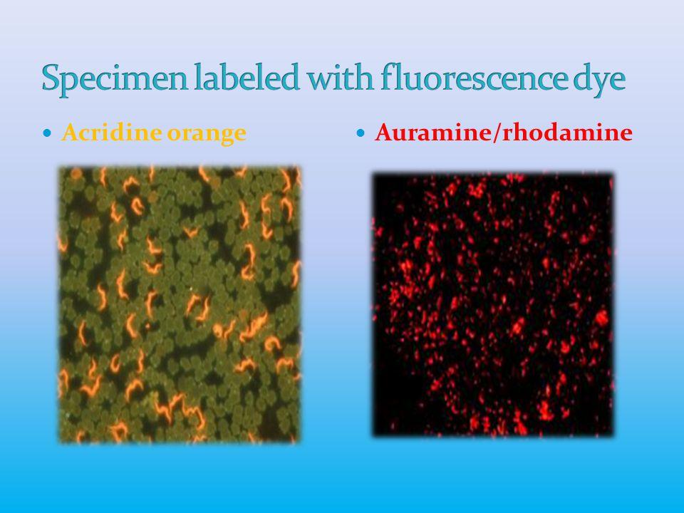 Acridine orange Auramine/rhodamine