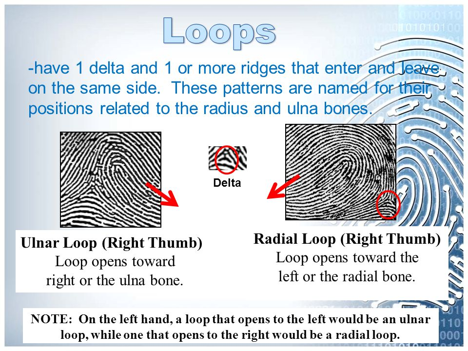 -have 1 delta and 1 or more ridges that enter and leave on the same side. These patterns are named for their positions related to the radius and ulna