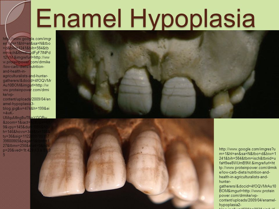 Enamel Hypoplasia http://www.google.com/imgres?u m=1&hl=en&sa=N&tbo=d&biw=1 241&bih=584&tbm=isch&tbnid=u faH9ee8WUmB9M:&imgrefurl=ht tp://www.proteinpower.com/drmik e/low-carb-diets/nutrition-and- health-in-agriculturalists-and- hunter- gatherers/&docid=4fOQVMrAu10 BOM&imgurl=http://www.protein power.com/drmike/wp- content/uploads/2009/04/enamel- hypoplasia2- blog.jpg&w=450&h=203&ei=4wK - UMquMIng8wT8mYGQBw&zoo m=1&iact=rc&dur=377&sig=1122 80970018739800865&page=1&t bnh=127&tbnw=251&start=0&nd sp=20&ved=1t:429,r:0,s:0,i:86&tx =212&ty=73 http://www.google.com/imgr es?um=1&hl=en&sa=N&tbo =d&biw=1241&bih=584&tb m=isch&tbnid=gdFyF7lNPd 12VM:&imgrefurl=http://ww w.proteinpower.com/drmike /low-carb-diets/nutrition- and-health-in- agriculturalists-and-hunter- gatherers/&docid=4fOQVMr Au10BOM&imgurl=http://w ww.proteinpower.com/drmi ke/wp- content/uploads/2009/04/en amel-hypoplasia3- blog.jpg&w=474&h=199&ei =4wK- UMquMIng8wT8mYGQBw &zoom=1&iact=hc&vpx=61 9&vpy=145&dur=1086&hov h=146&hovw=348&tx=108& ty=36&sig=1122809700187 39800865&page=1&tbnh=1 27&tbnw=250&start=0&nds p=20&ved=1t:429,r:3,s:0,i:9 5