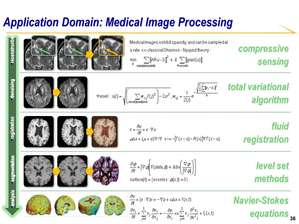 36 compressive sensing level set methods fluid registration total variational algorithm Application Domain: Medical Image Processing  denoising  registration  segmentation  analysis  reconstruction Navier-Stokes equations