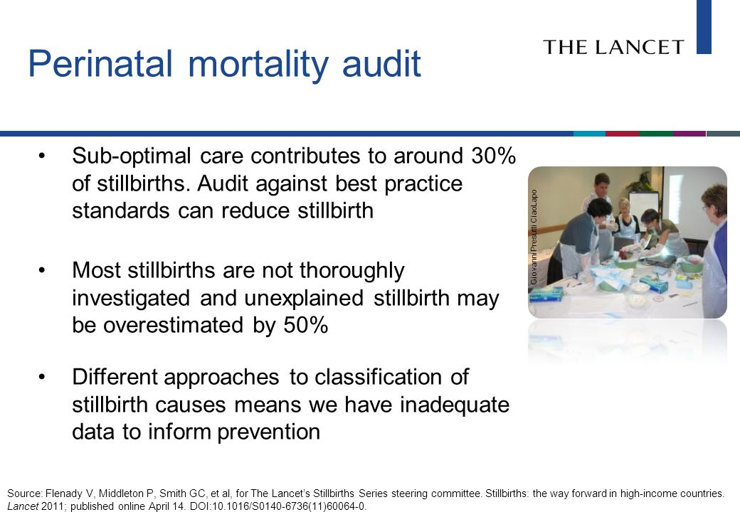 Perinatal mortality audit Sub-optimal care contributes to around 30% of stillbirths.