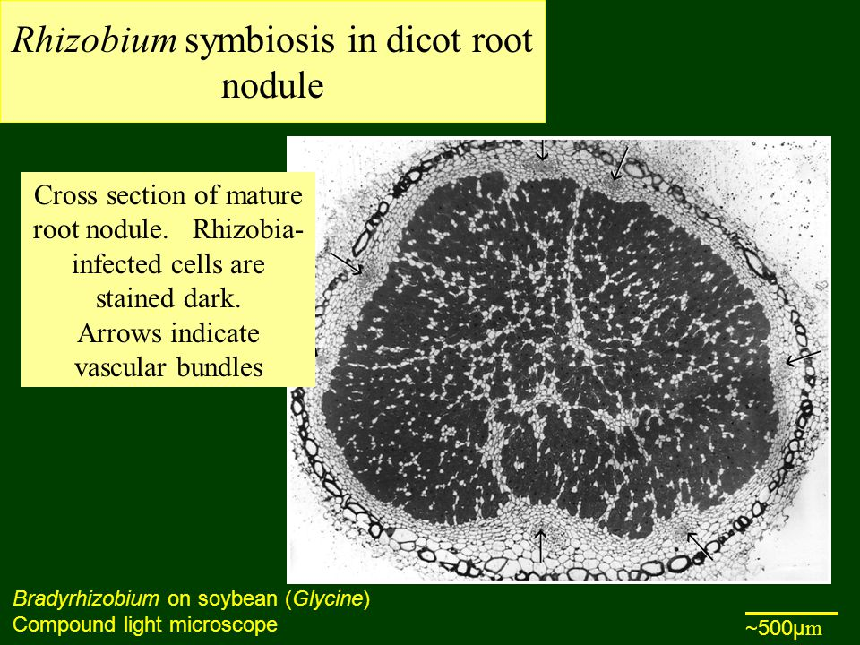 Rhizobium symbiosis in dicot root nodule Bradyrhizobium on soybean (Glycine) Compound light microscope Cross section of mature root nodule.
