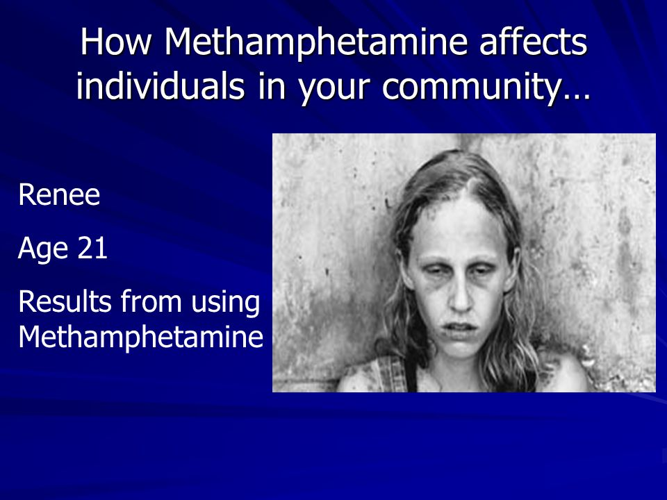 How Methamphetamine affects individuals in your community… Renee Age 21 Results from using Methamphetamine