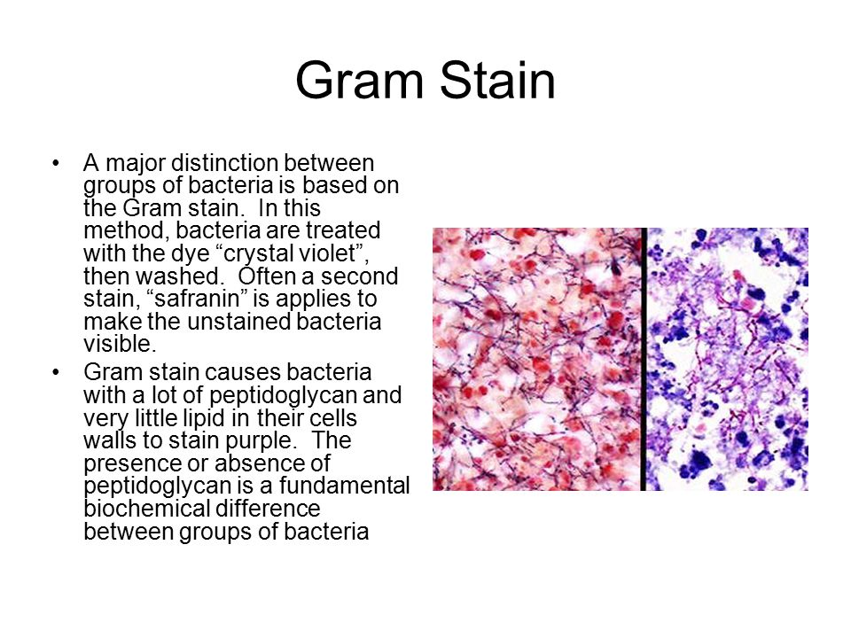 """Gram Stain A major distinction between groups of bacteria is based on the Gram stain. In this method, bacteria are treated with the dye """"crystal viole"""