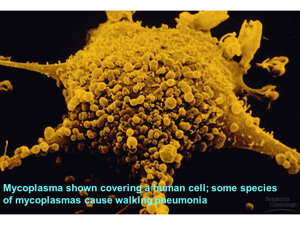 Mycoplasma shown covering a human cell; some species of mycoplasmas cause walking pneumonia