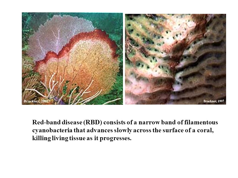 Red-band disease (RBD) consists of a narrow band of filamentous cyanobacteria that advances slowly across the surface of a coral, killing living tissue as it progresses.