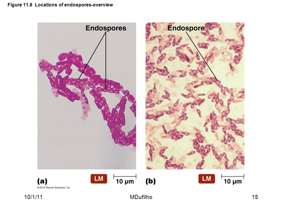 Figure 11.8 Locations of endospores-overview 10/1/11MDufilho15
