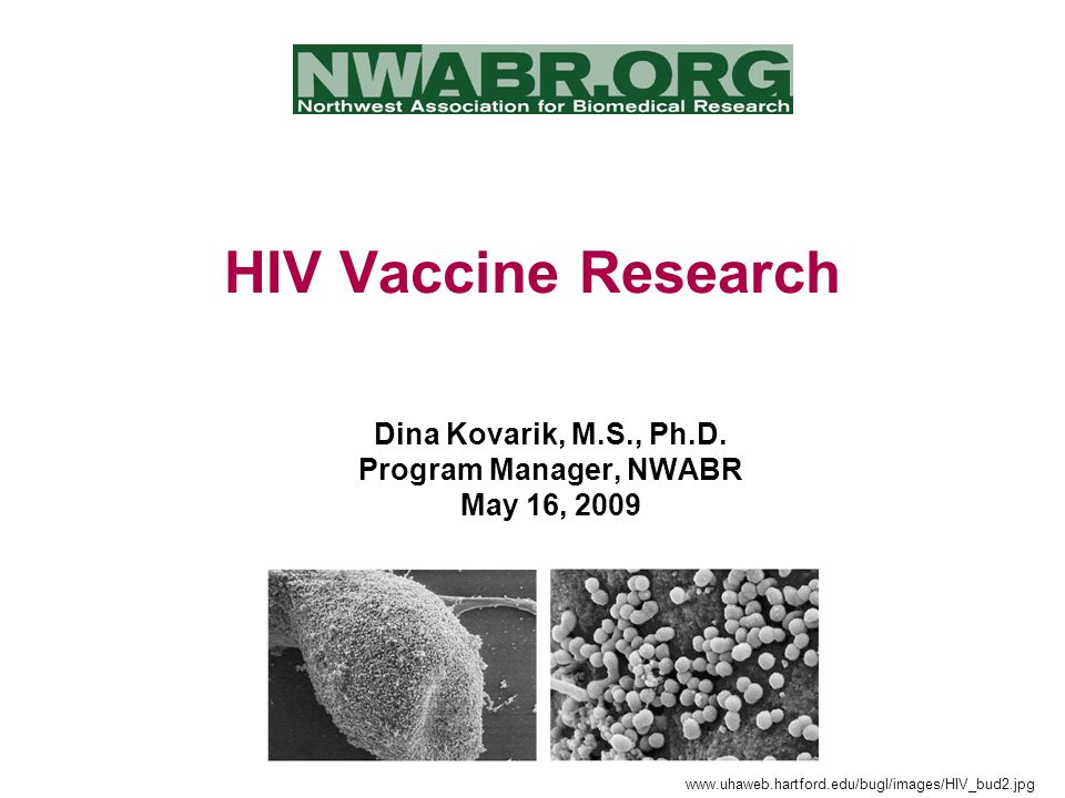 HIV Vaccine Research Dina Kovarik, M.S., Ph.D.