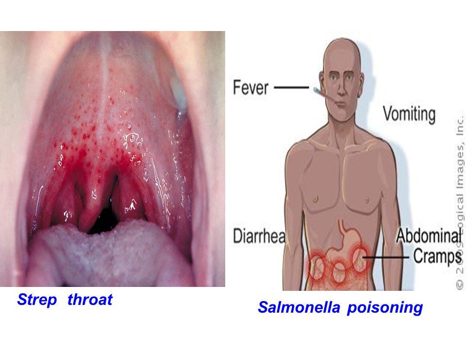 Strep throat Salmonella poisoning