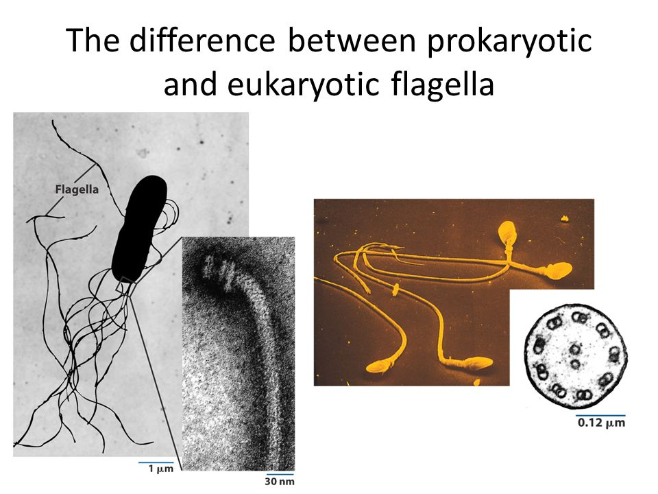The difference between prokaryotic and eukaryotic flagella