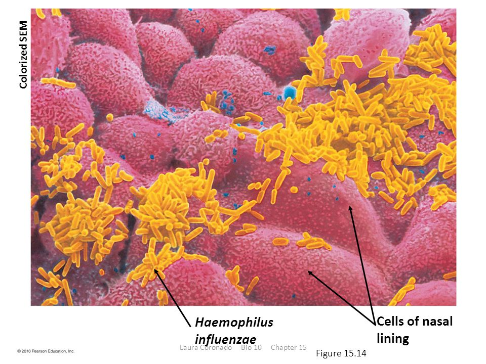 Haemophilus influenzae Cells of nasal lining Colorized SEM Figure 15.14 Laura Coronado Bio 10 Chapter 15