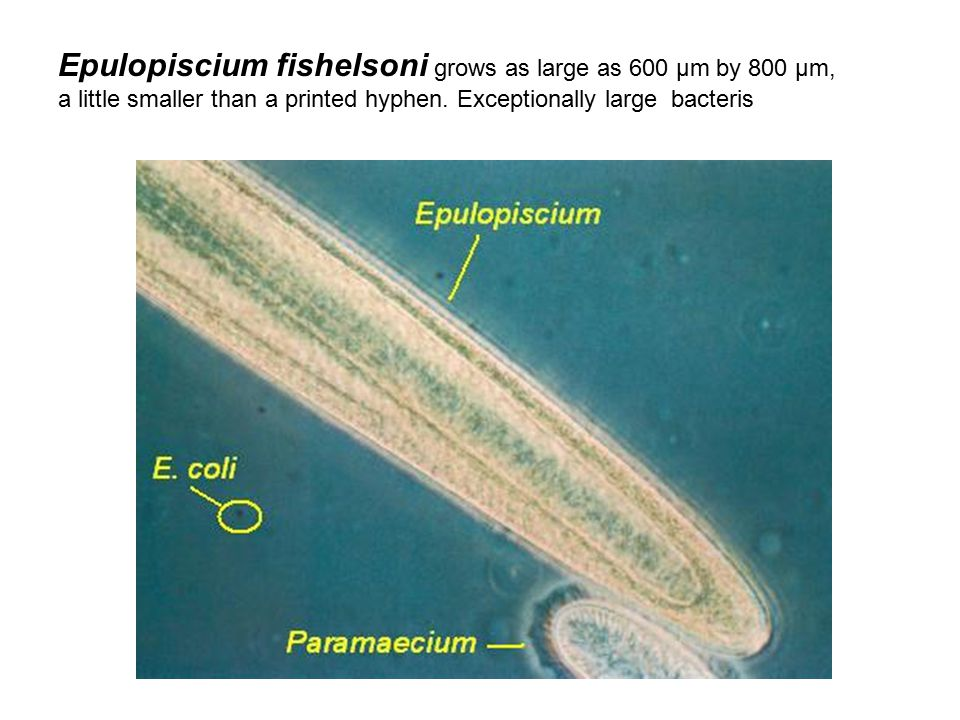 Epulopiscium fishelsoni grows as large as 600 µm by 800 µm, a little smaller than a printed hyphen.