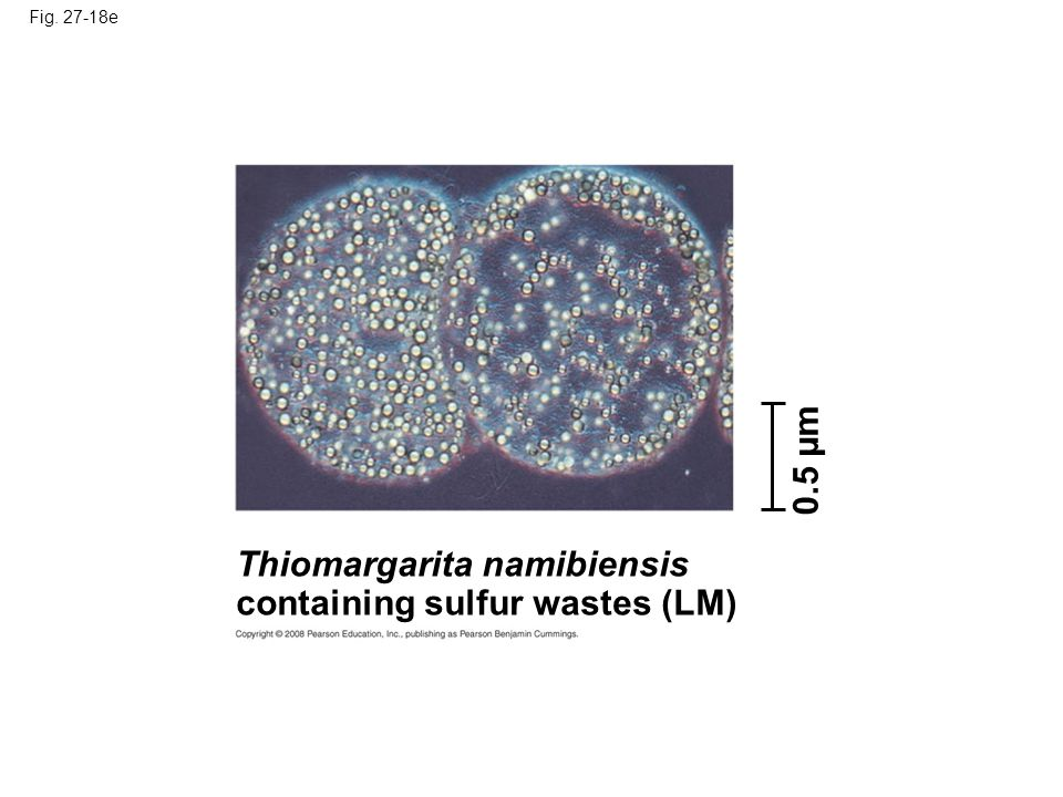 Fig. 27-18e Thiomargarita namibiensis containing sulfur wastes (LM) 0.5 µm