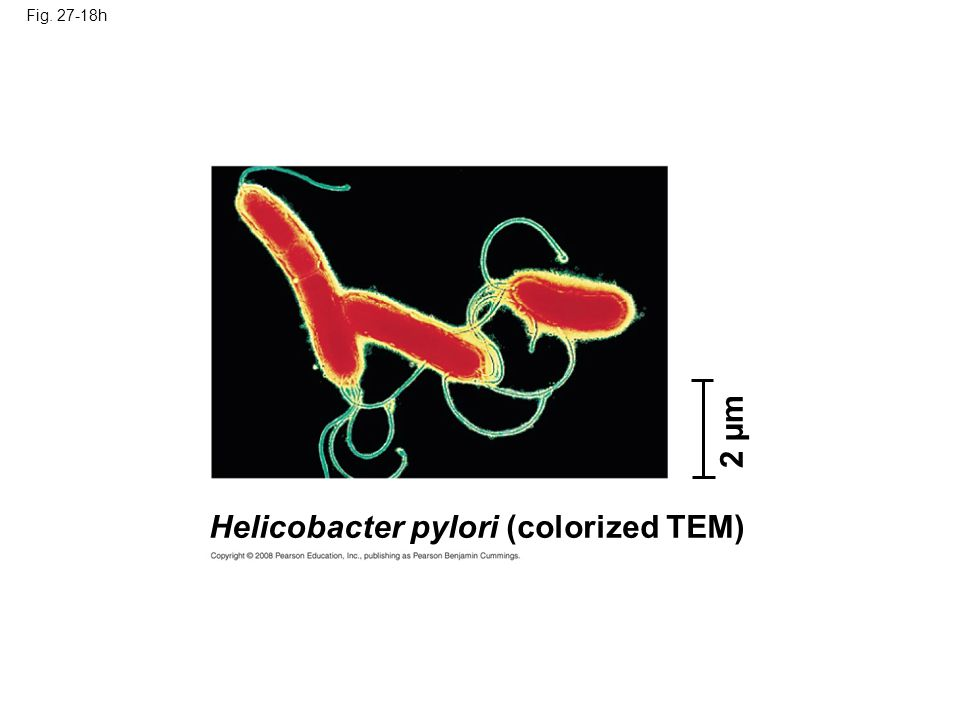 Fig. 27-18h Helicobacter pylori (colorized TEM) 2 µm