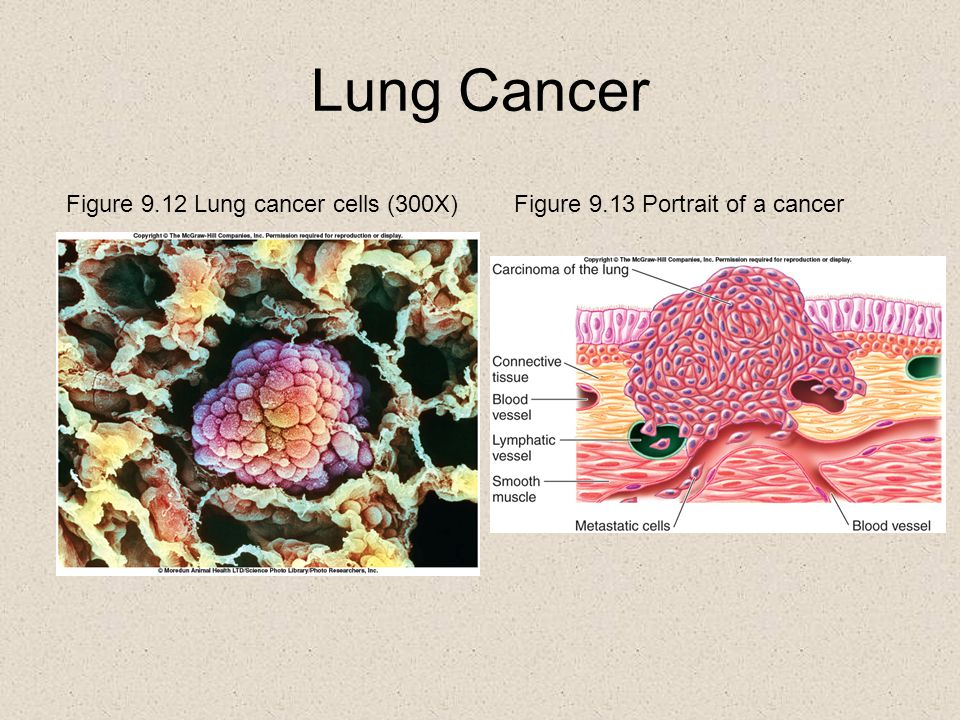 Lung Cancer Figure 9.12 Lung cancer cells (300X)Figure 9.13 Portrait of a cancer