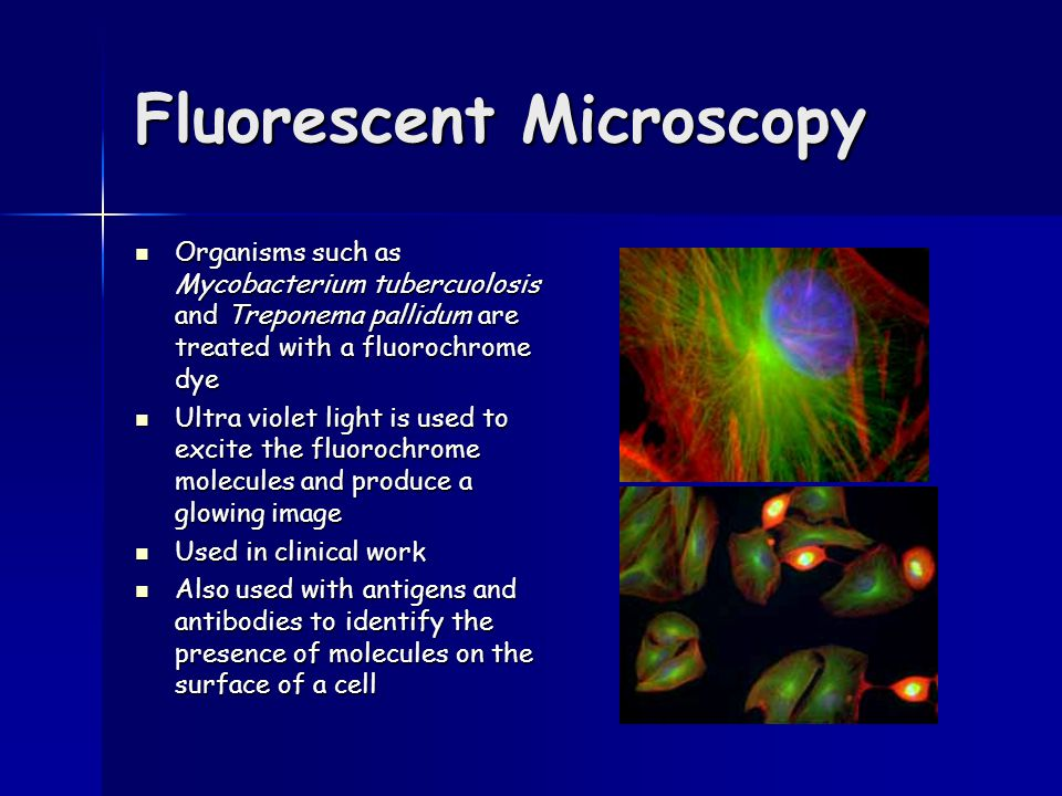 Fluorescent Microscopy Organisms such as Mycobacterium tubercuolosis and Treponema pallidum are treated with a fluorochrome dye Organisms such as Mycobacterium tubercuolosis and Treponema pallidum are treated with a fluorochrome dye Ultra violet light is used to excite the fluorochrome molecules and produce a glowing image Ultra violet light is used to excite the fluorochrome molecules and produce a glowing image Used in clinical work Used in clinical work Also used with antigens and antibodies to identify the presence of molecules on the surface of a cell Also used with antigens and antibodies to identify the presence of molecules on the surface of a cell