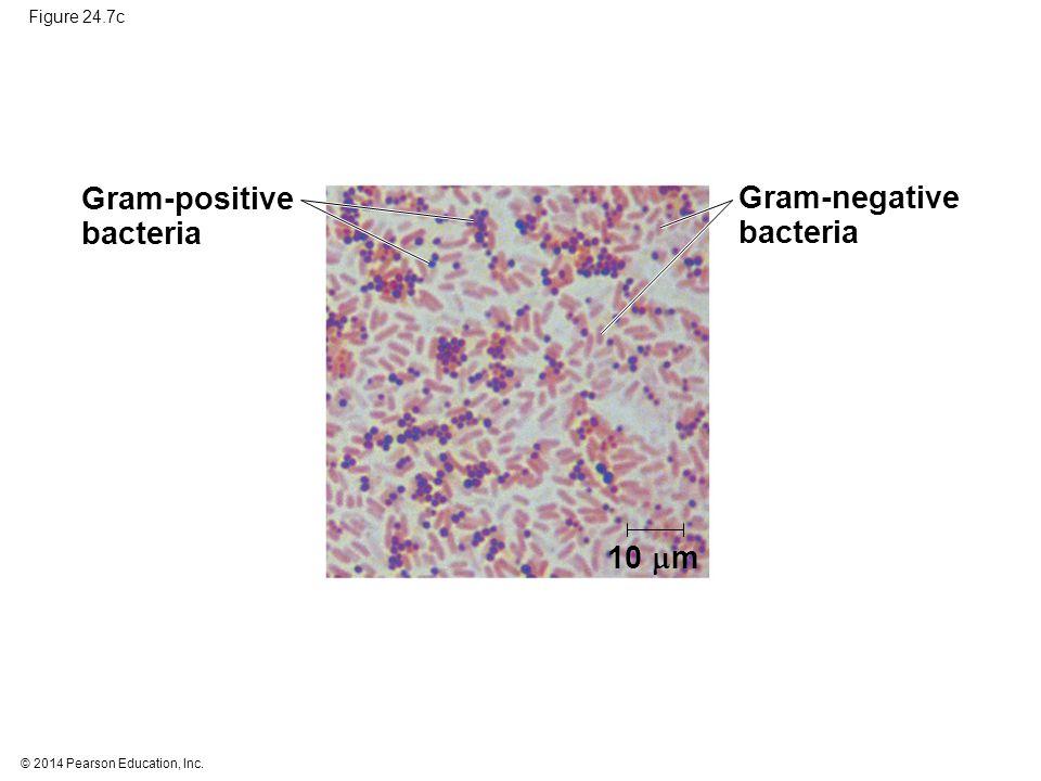 © 2014 Pearson Education, Inc. Figure 24.7c Gram-negative bacteria 10  m Gram-positive bacteria
