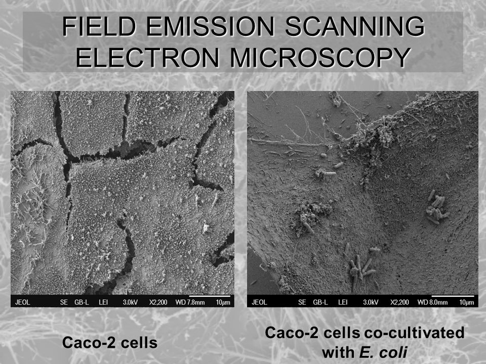 FIELD EMISSION SCANNING ELECTRON MICROSCOPY Caco-2 cells Caco-2 cells co-cultivated with E. coli