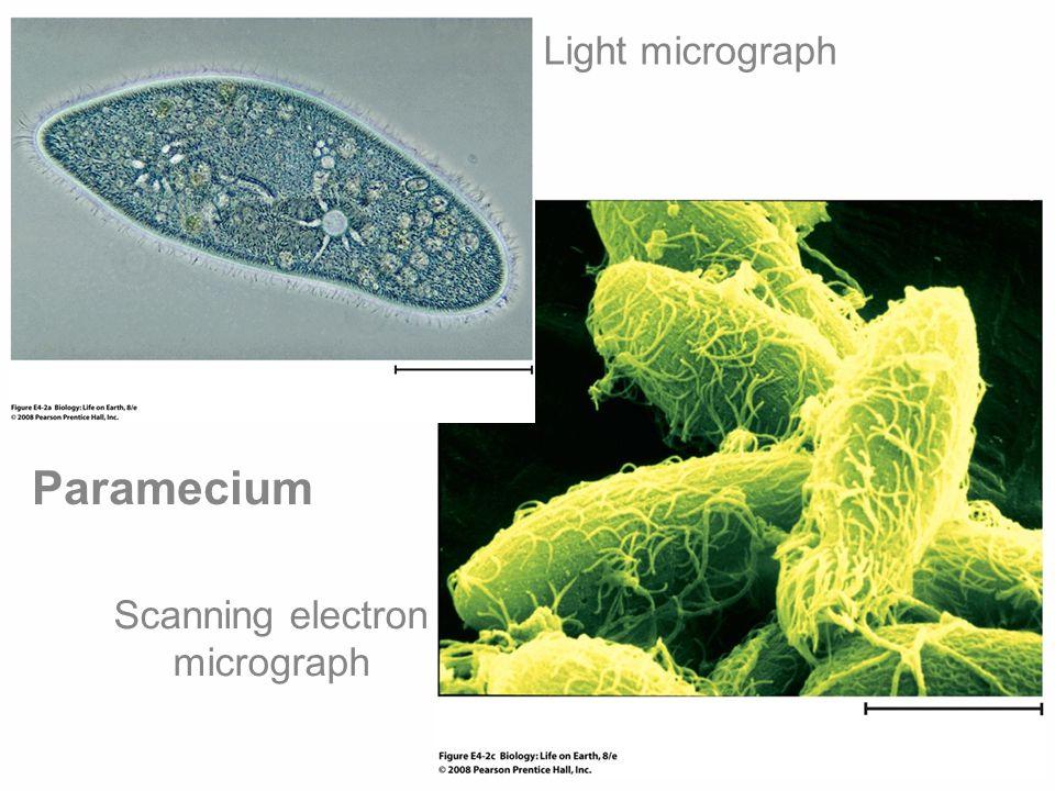 Light micrograph Scanning electron micrograph Paramecium