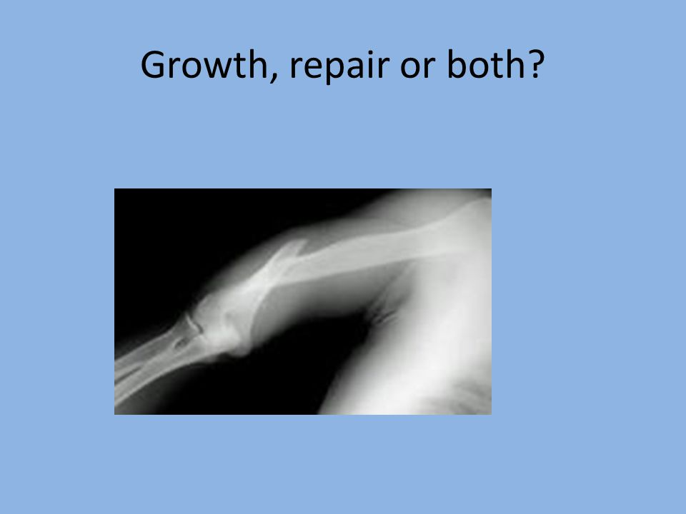 Growth, repair or both