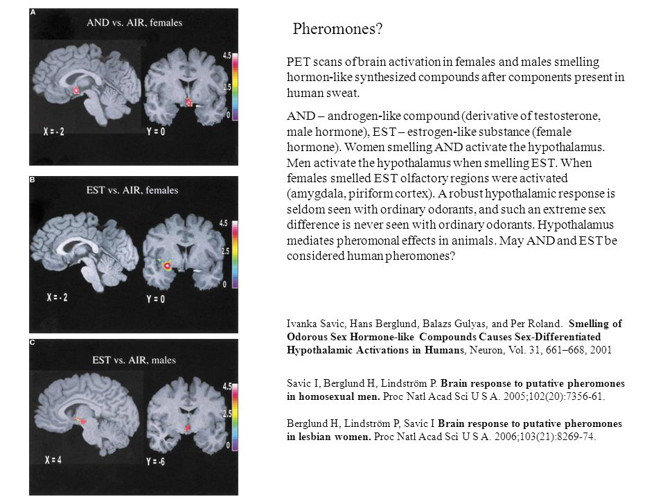 Pheromones? PET scans of brain activation in females and males smelling hormon-like synthesized compounds after components present in human sweat. AND