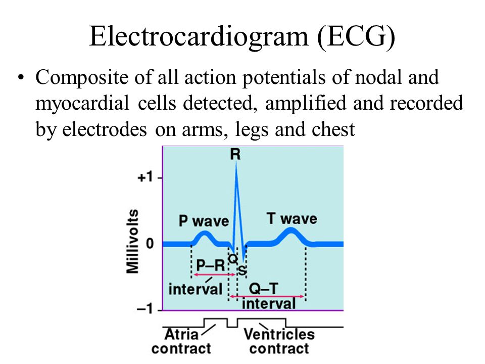 Electrocardiogram (ECG) Composite of all action potentials of nodal and myocardial cells detected, amplified and recorded by electrodes on arms, legs and chest