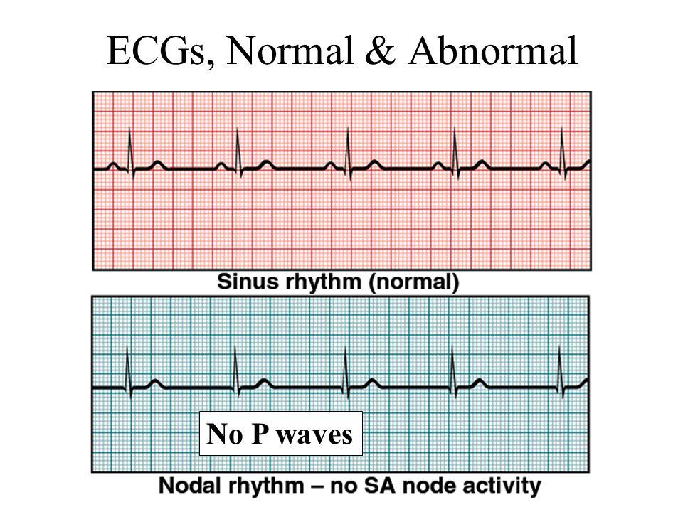 ECGs, Normal & Abnormal No P waves
