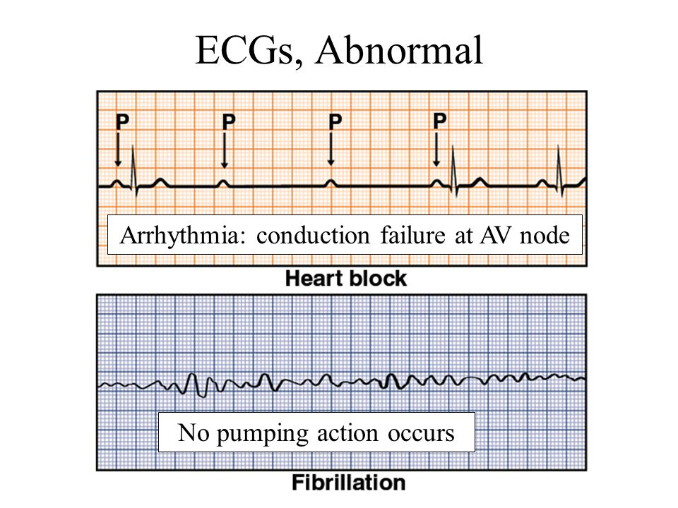 ECGs, Abnormal Arrhythmia: conduction failure at AV node No pumping action occurs