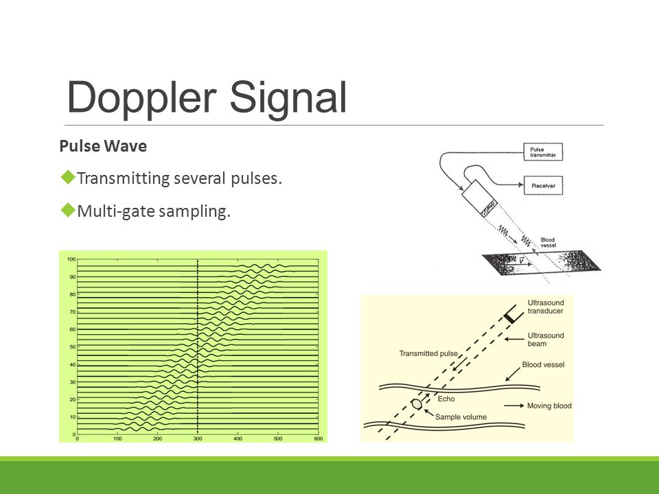 Doppler Signal Pulse Wave  Transmitting several pulses.  Multi-gate sampling.
