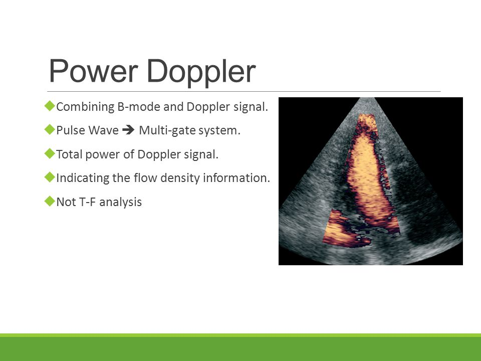 Power Doppler  Combining B-mode and Doppler signal.