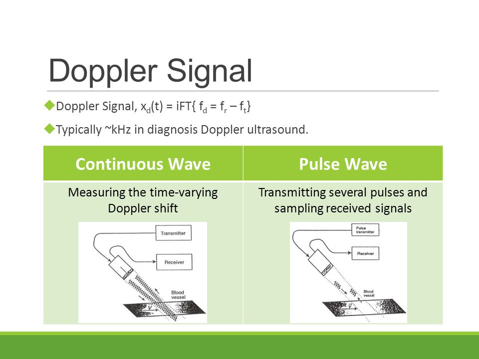  Doppler Signal, x d (t) = iFT{ f d = f r – f t }  Typically ~kHz in diagnosis Doppler ultrasound.