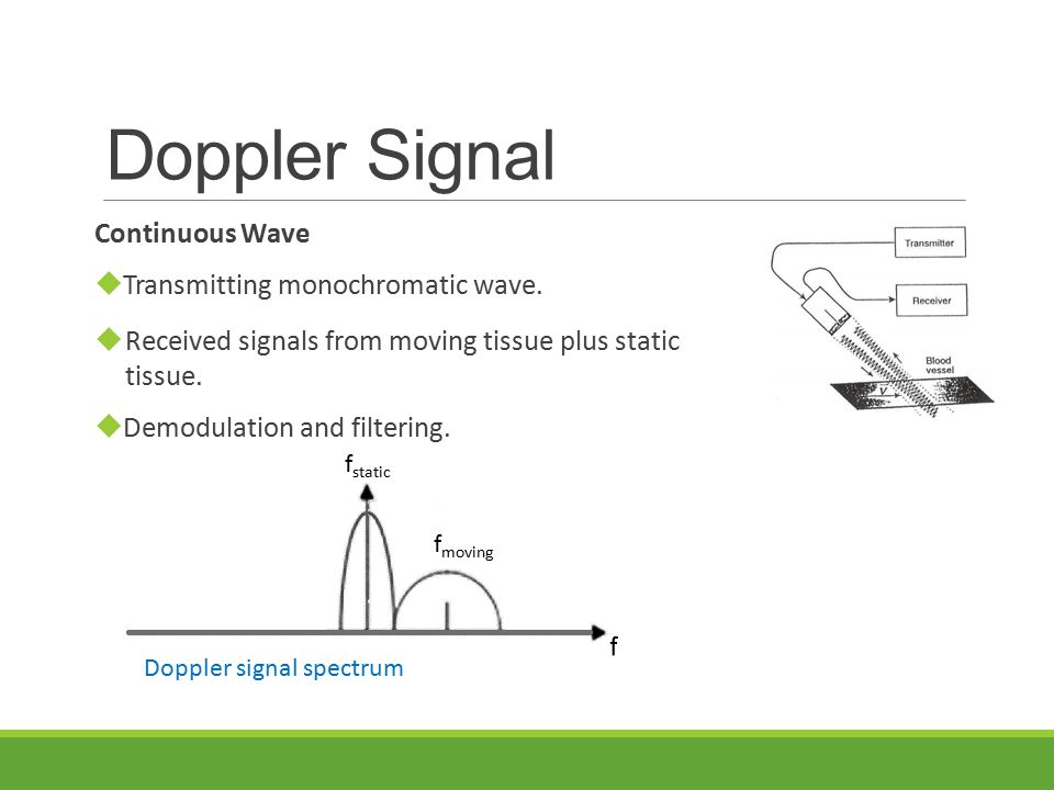 Reference  The Difference Between Colour Doppler Velocity Imaging and Power Doppler Imaging, W.
