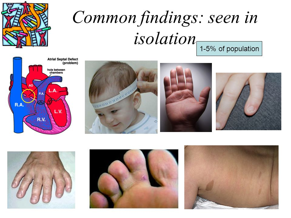Common findings: seen in isolation 1-5% of population