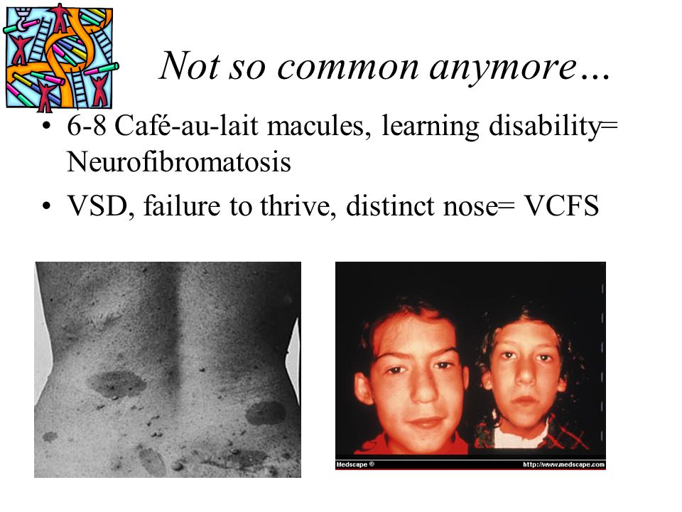 Not so common anymore… 6-8 Café-au-lait macules, learning disability= Neurofibromatosis VSD, failure to thrive, distinct nose= VCFS