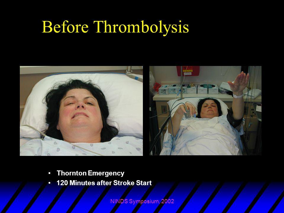 NINDS Symposium, 2002 Before Thrombolysis Thornton Emergency 120 Minutes after Stroke Start