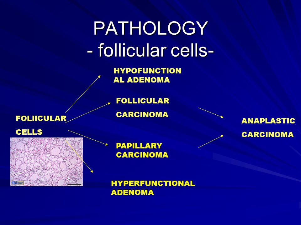 PATHOLOGY - follicular cells- FOLlICULAR CELLS HYPOFUNCTION AL ADENOMA FOLLICULAR CARCINOMA PAPILLARY CARCINOMA HYPERFUNCTIONAL ADENOMA ANAPLASTIC CAR