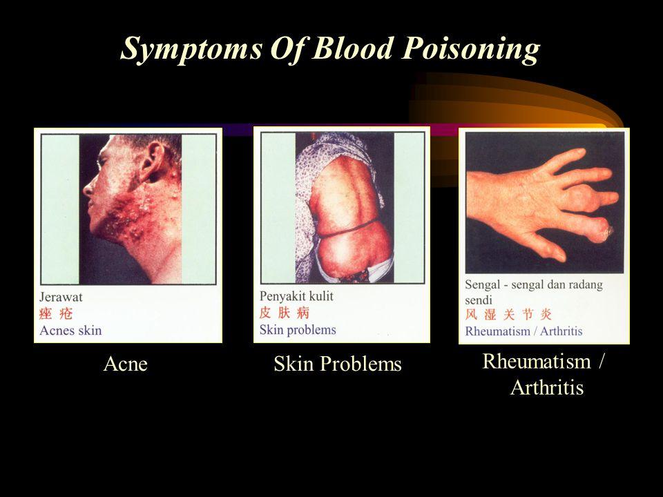 Symptoms Of Blood Poisoning Acne Skin Problems Rheumatism / Arthritis