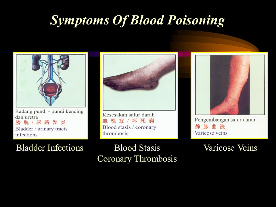Symptoms Of Blood Poisoning Bladder InfectionsBlood Stasis Coronary Thrombosis Varicose Veins