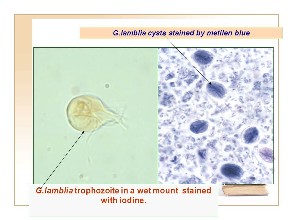 intestinalis trophozoite in a wet mount stained with iodine. G.lamblia trophozoite in a wet mount stained with iodine. G.lamblia cysts stained by meti