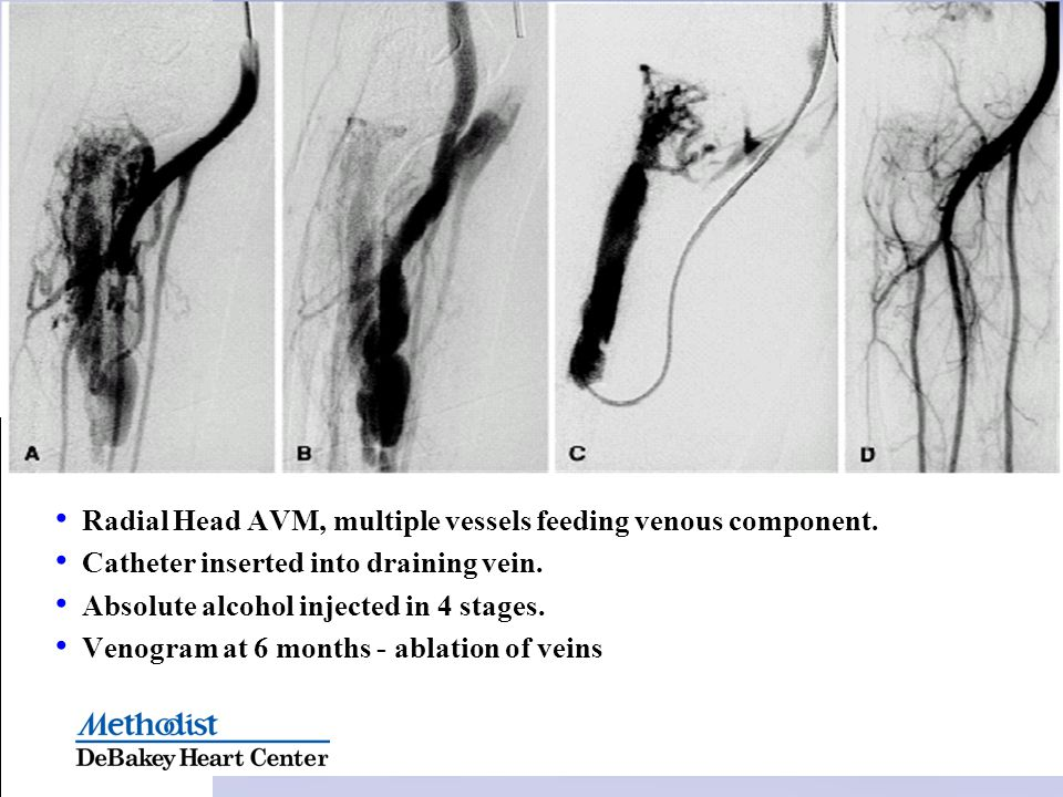 Radial Head AVM, multiple vessels feeding venous component. Catheter inserted into draining vein. Absolute alcohol injected in 4 stages. Venogram at 6