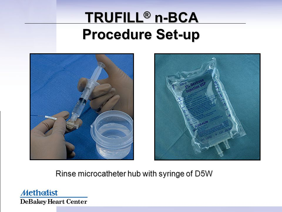 Rinse microcatheter hub with syringe of D5W TRUFILL ® n-BCA Procedure Set-up